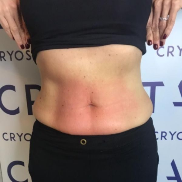 After Picture - Cryotoning