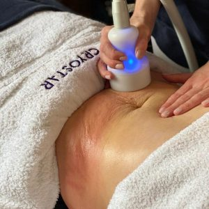 CryoToning - the best treatment to address loose skin, cellulite, and signs of ageing.