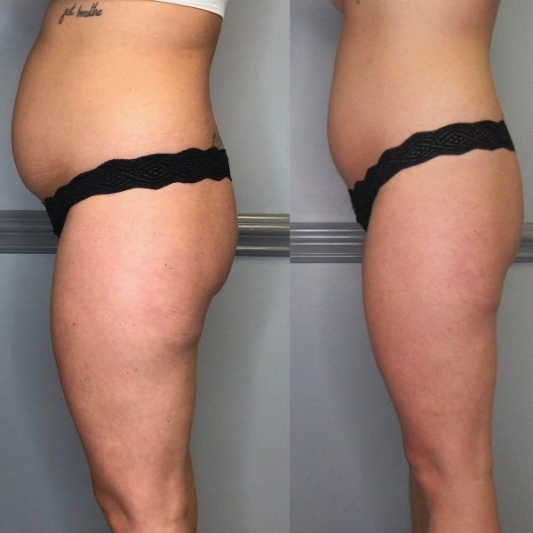 Before and After Inch loss with Cryoslimming