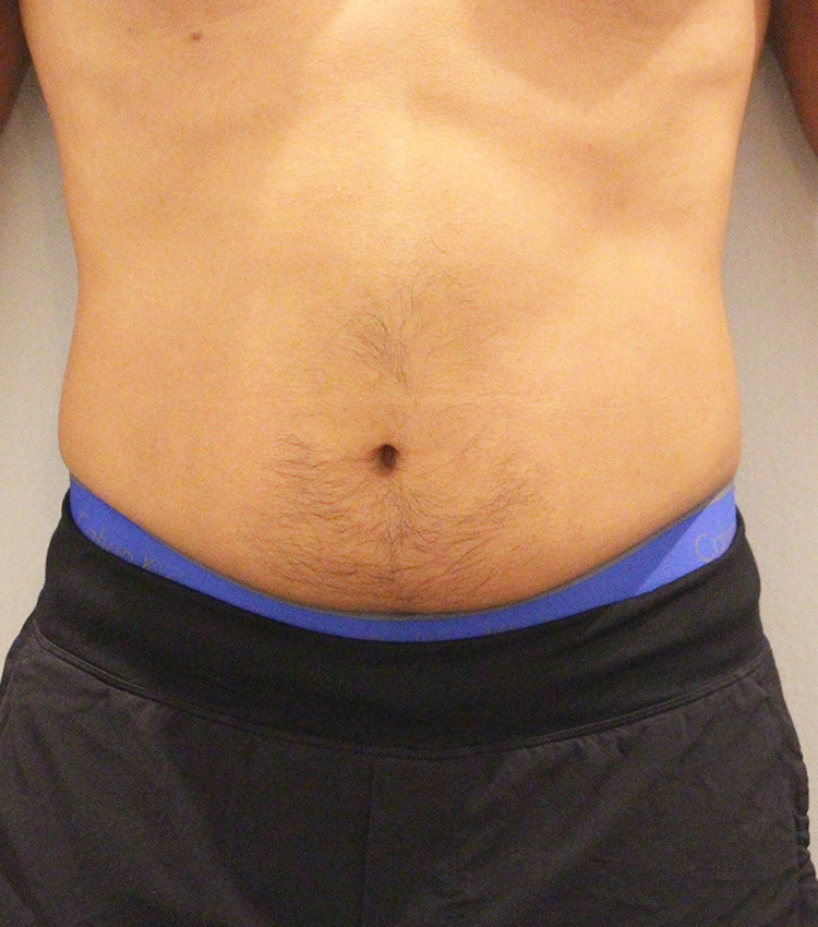 Abdomen Male Before