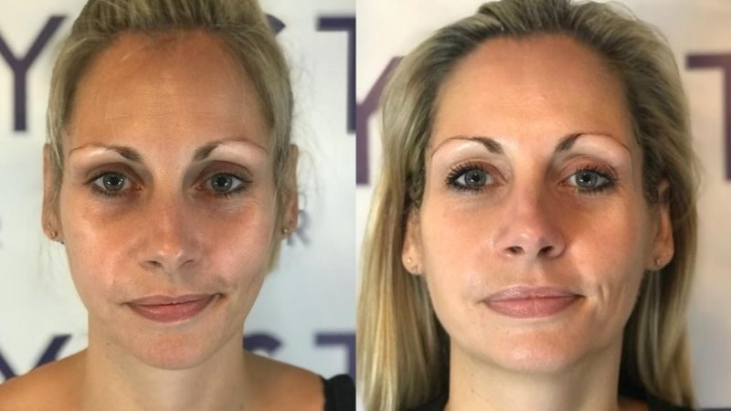 Before and After Facial