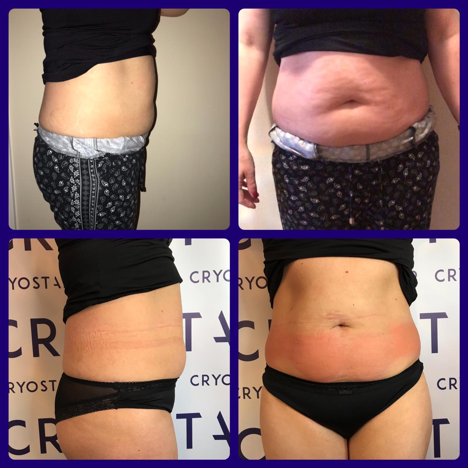 CryoSlimming before and after
