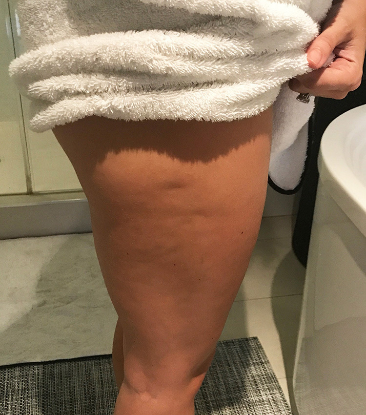 Toning Before Cellulite