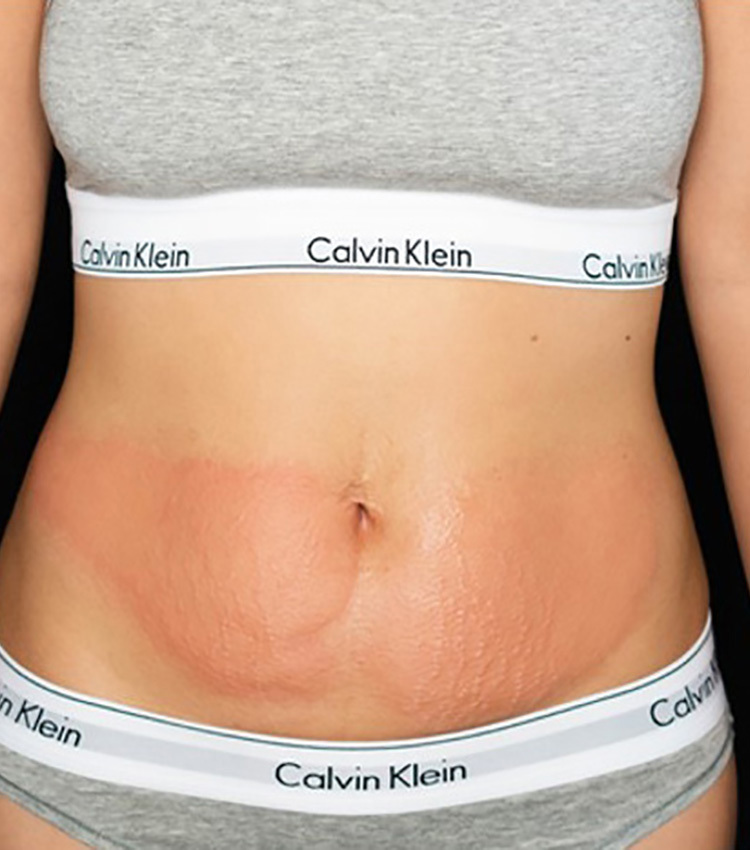 Cryo Slimming Abdomen After 750x850